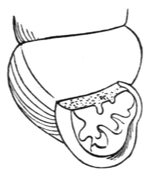 http://commons.wikimedia.org/wiki/File:Vertigo_ovata_aperture.jpg